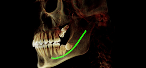Left Buccal View